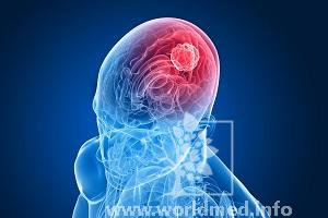 Лечение рака головного мозга в Италии