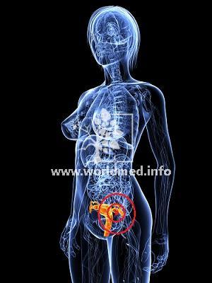Рак яичников - 4 стадия: сколько живут с таким недугом