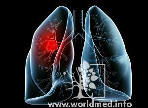 Мелкоклеточный рак легкого 4 стадии: прогноз продолжительности жизни
